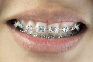 始める前に知っておきたい!歯並び矯正の基礎知識まとめ