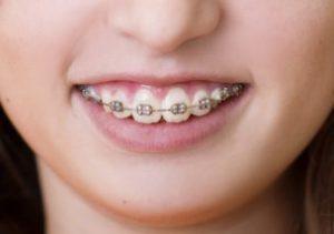 矯正中の歯磨きを支える3つのポイントと効き目を促すアイテム