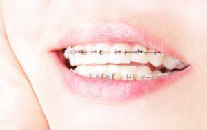 歯並びの矯正はなぜあんなに費用がかかるのか?