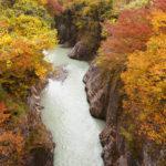 石川県でおすすめの矯正歯科5選を紹介