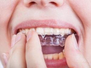 大田区で専門的な矯正歯科を扱う歯医者さん4選!通いやすい環境