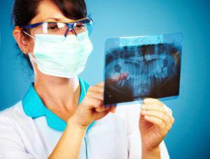 開きっぱなしは歯を失うリスク大!開口(開咬)の弊害や矯正法