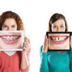 矯正中に目立つ歯の着色汚れ!原因と予防対策