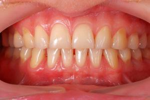 歯並びが悪くなる原因を探って、自分に合った治療法を知ろう!