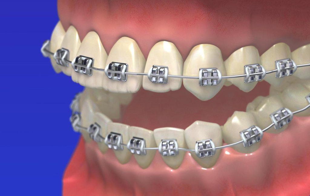 歯並び を 良く する 方法