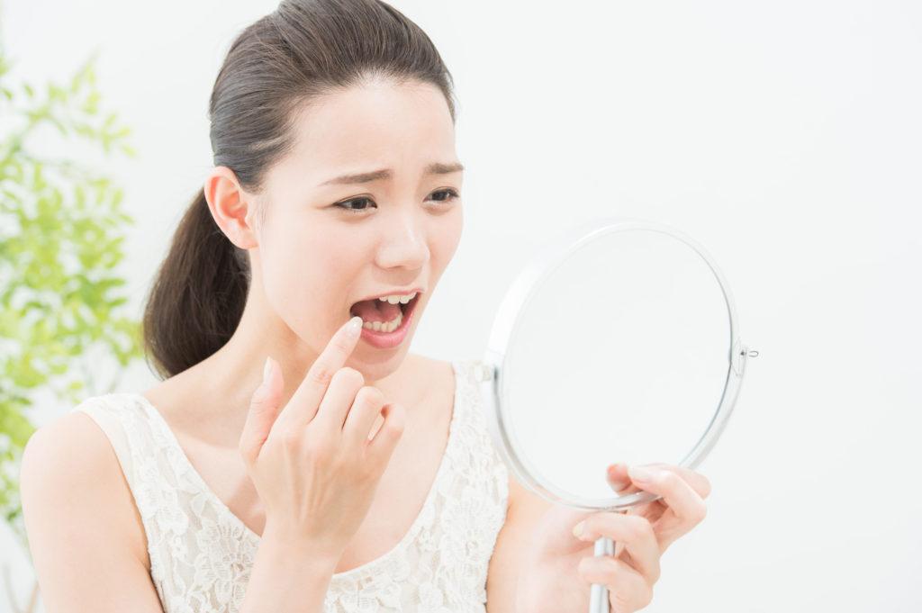 虫歯を気にする女性