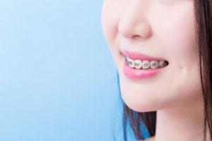 歯並びを整えたい!東京都内の矯正歯科必読おすすめポイント!