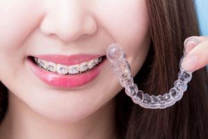 新小岩駅周辺の矯正歯科情報 おすすめポイントや料金をチェック